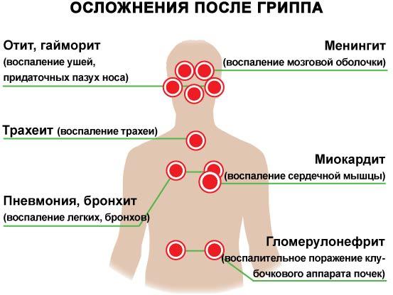 Ускладнення від грипу